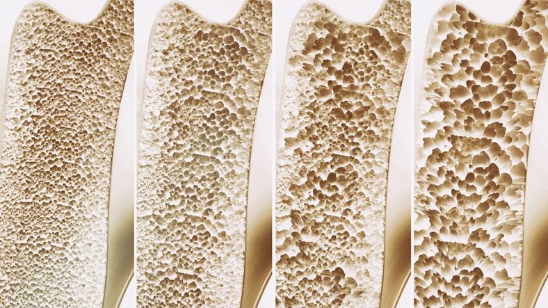 Bisphosphonates are known to inhibit bone resorption through high-affinity binding to hydroxyapatite.