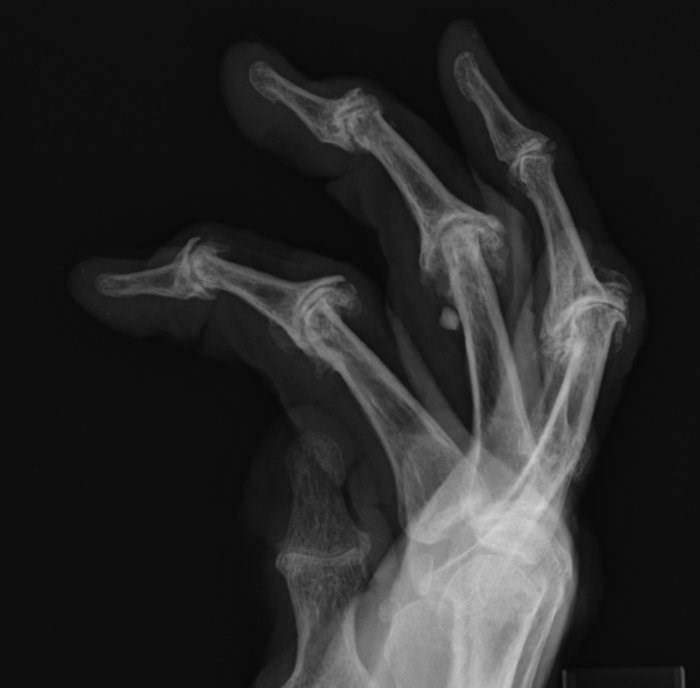 Patient Involvement Can Reduce X-Ray Imaging Errors