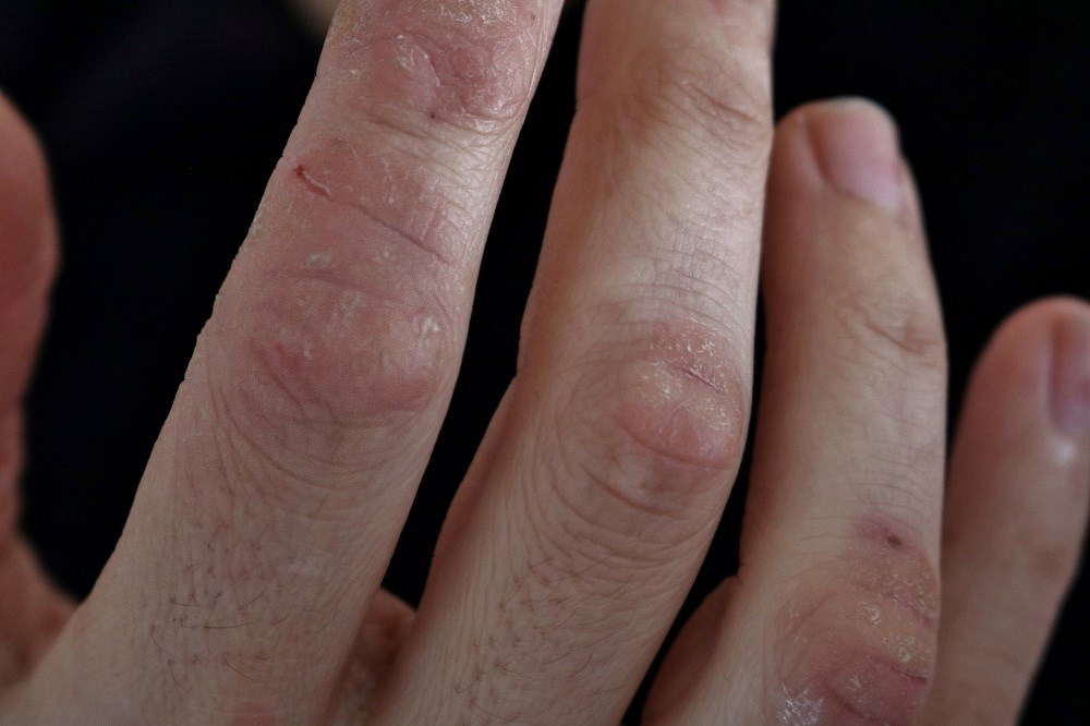 Serum Amyloid A Levels May Act as Biomarker for Disease Activity in Psoriatic Arthritis
