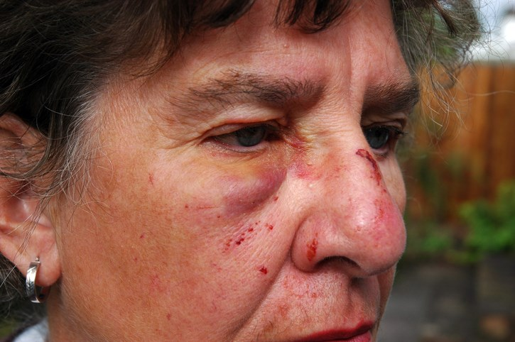 Facial Fractures From Recreational Activity Up in Seniors