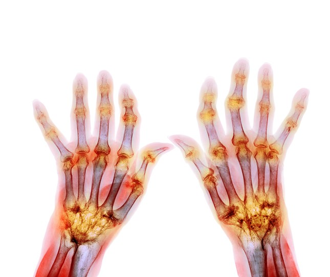 OMERACT Assessment Effectively Identifies Rheumatoid Arthritis Flares