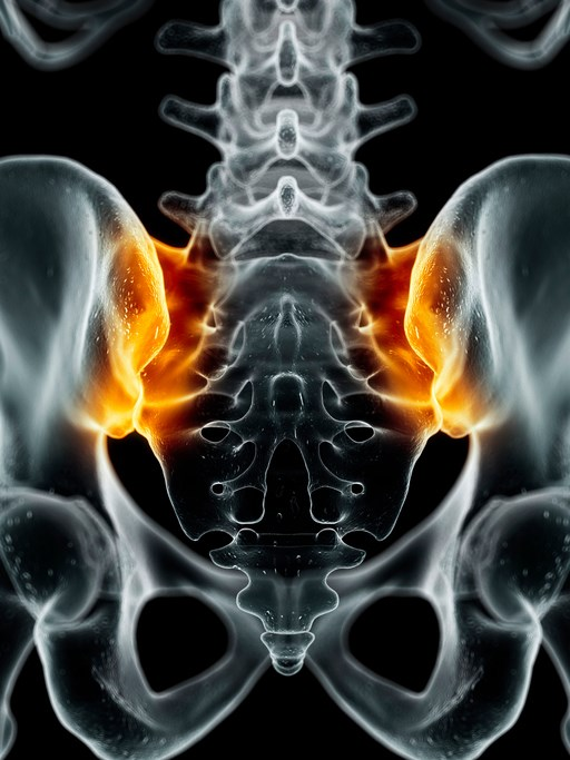 Nonradiographic Axial Spondyloarthritis May Be Revealed by MRI