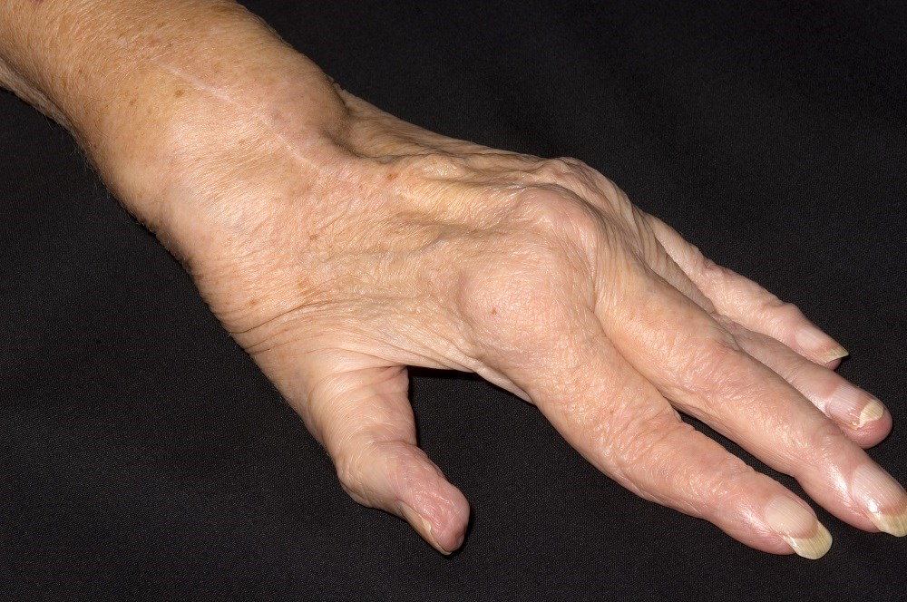 Rheumatoid Factor Ups Risk of 10-Year Cardiovascular Morbidity