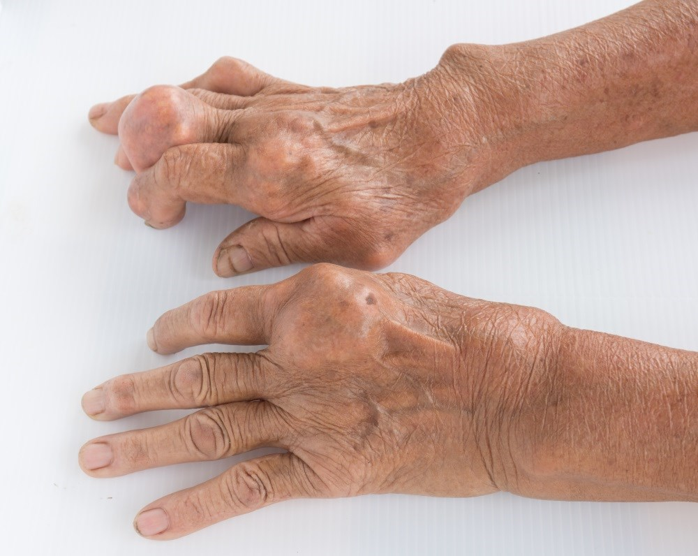 Gout Flares Reduced by Febuxostat Increase Plus Low-Dose Colchicine