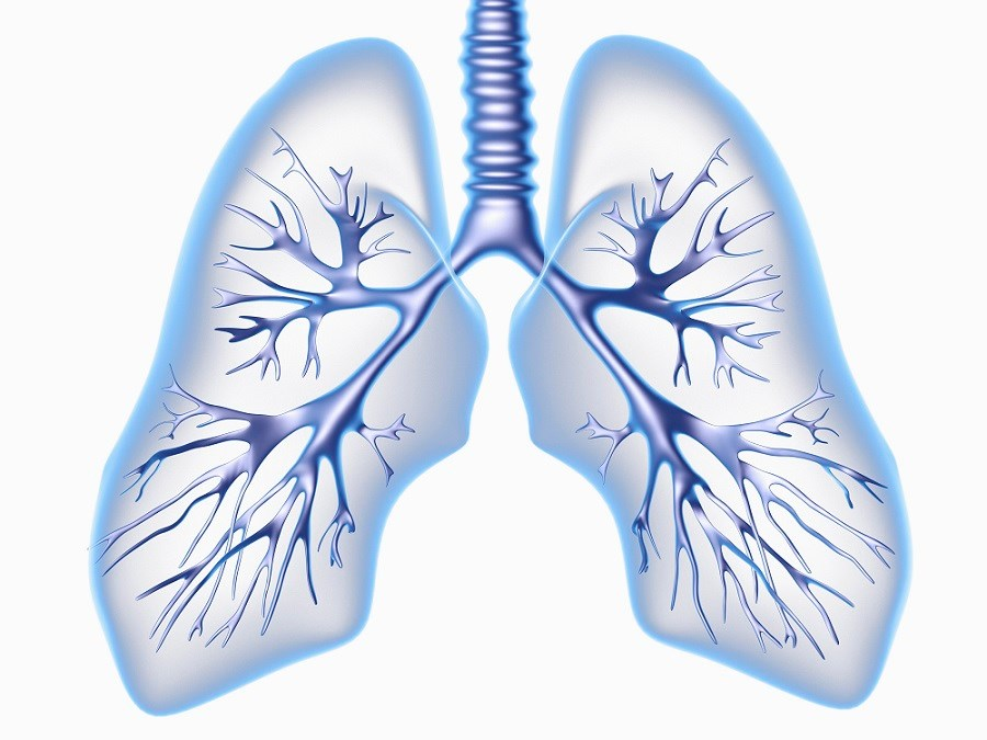 Advancing Understanding of Shrinking Lung Syndrome in SLE