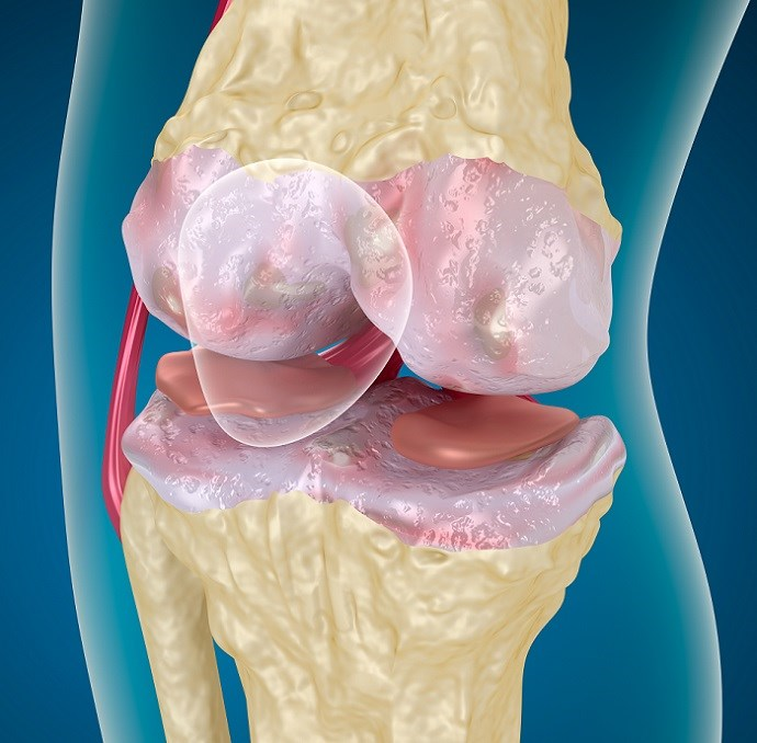 FDA Approves Durolane to Treat Knee Osteoarthritis Pain