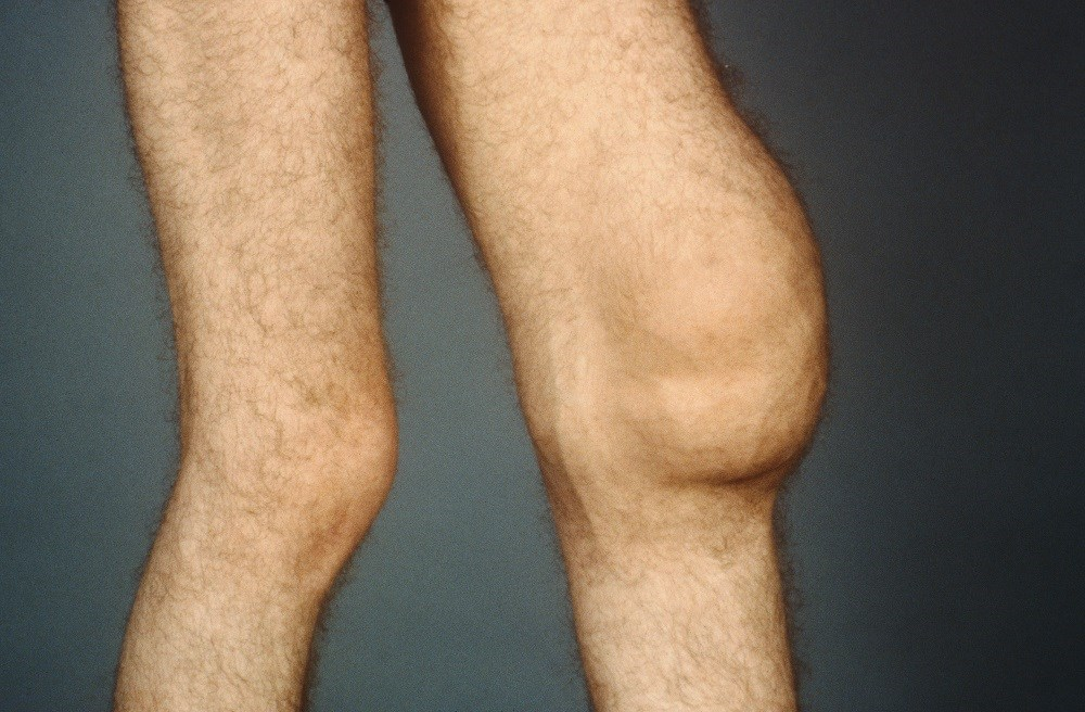 Effusion-Synovitis and Joint Structural Abnormalities in Patients with Knee OA
