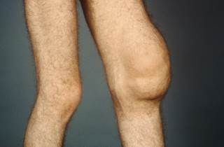 The researchers sought to describe the associations between effusion-synovitis and joint structural changes in patients with knee OA.