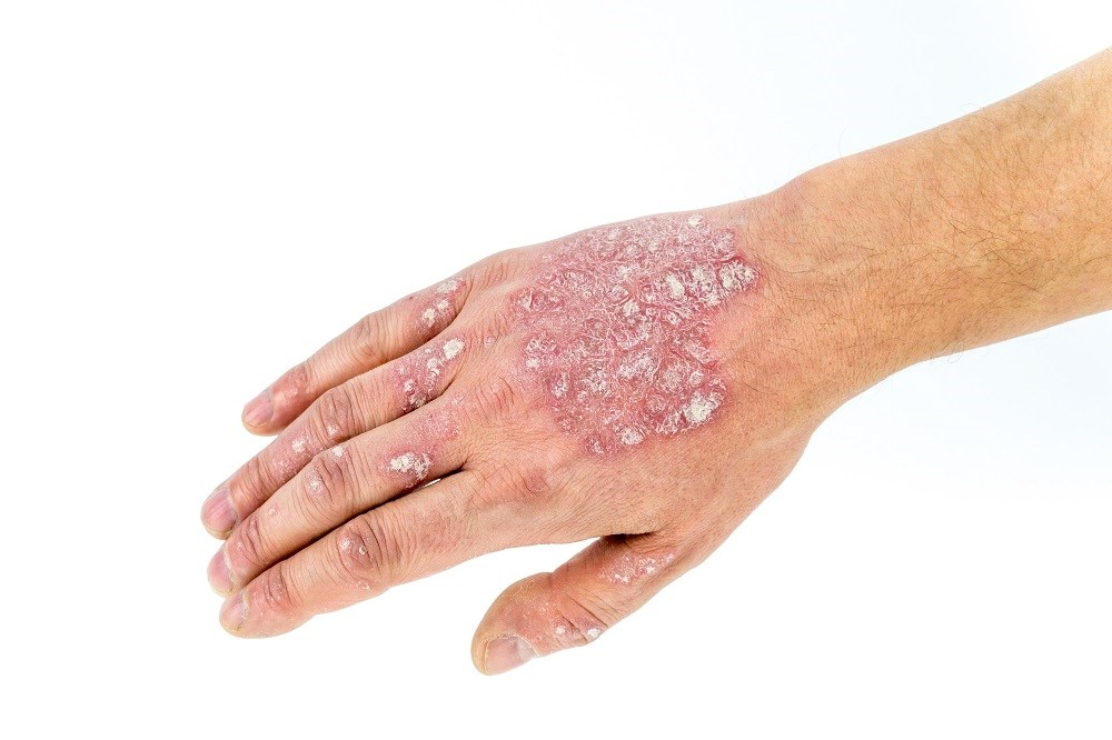 Psoriatic Arthritits Patients Maintain Clinical Improvement With Long-Term Secukinumab