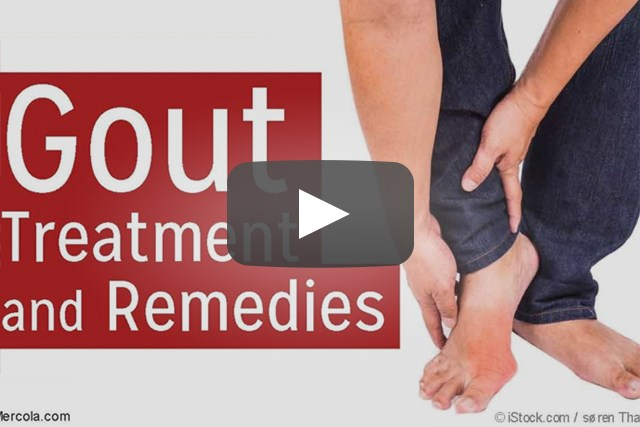 Gout Flares May Be Reduced With Febuxostat