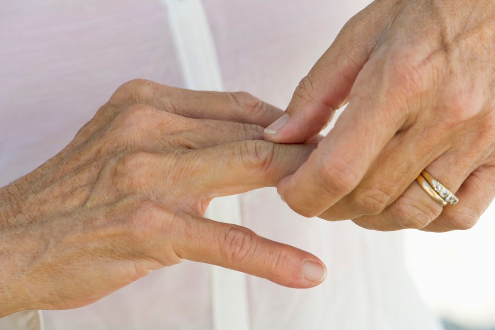 Improved Function, Pain in Hand Osteoarthritis With Pregabalin