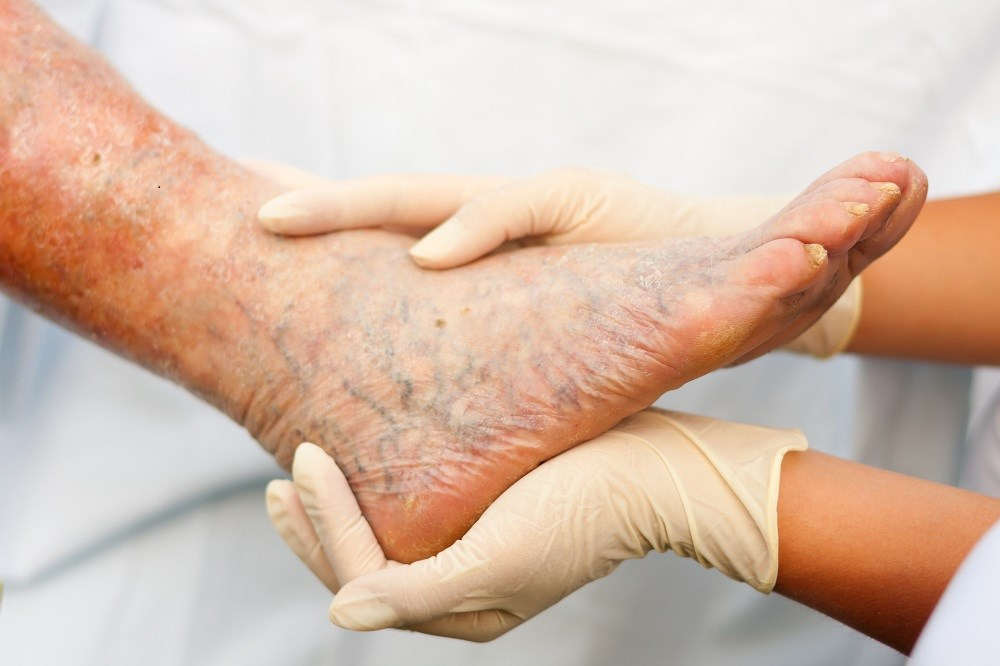 Allopurinol use of 181 days to 2 years was associated with a lower risk of peripheral arterial disease compared with no allopurinol use.