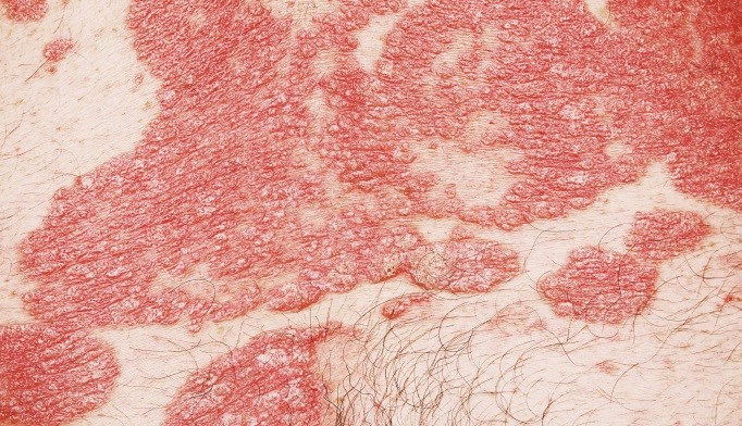 Systemic Arterial Inflammation Increased in Psoriasis