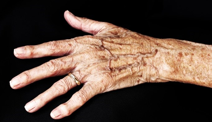 Risk of Liver Disease Increased With Psoriatic Arthritis