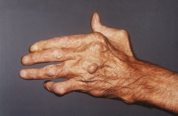 Serotonin Plays Fundamental Role in Rheumatoid Arthritis