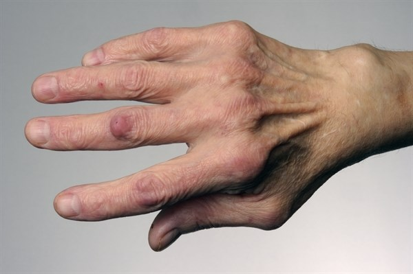 The dorsal 4-finger technique is a reliable method to examine metacarpophalangeal joints in rheumatoid arthritis. <i>Credit: SPL/Science Source</i>