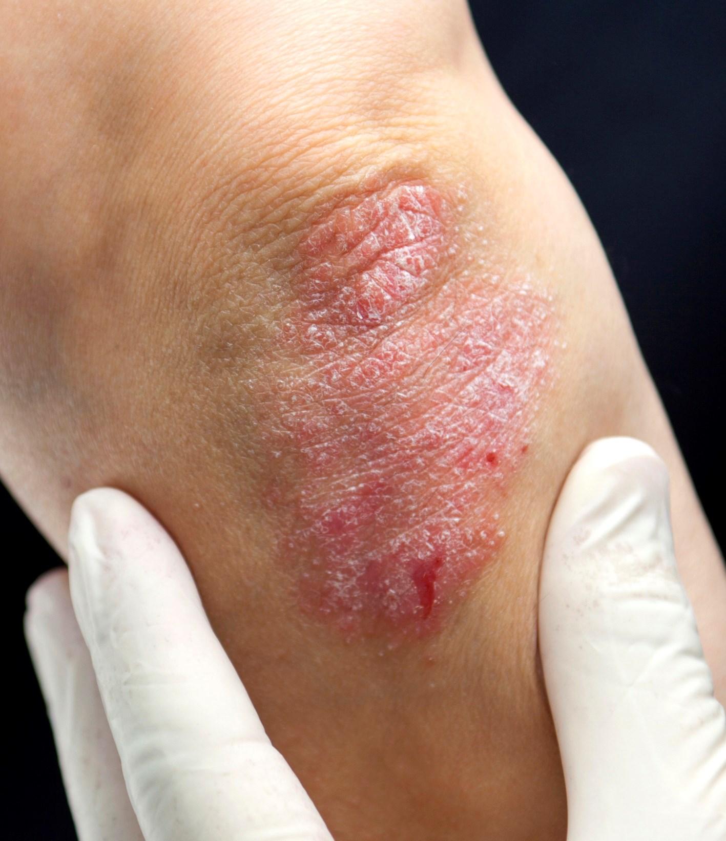 Adalimumab Biosimilar ABP 501 Safe, Effective for Psoriasis
