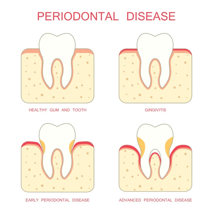Tocilizumab Improved Periodontal, Rheumatologic Parameters in Patients With RA