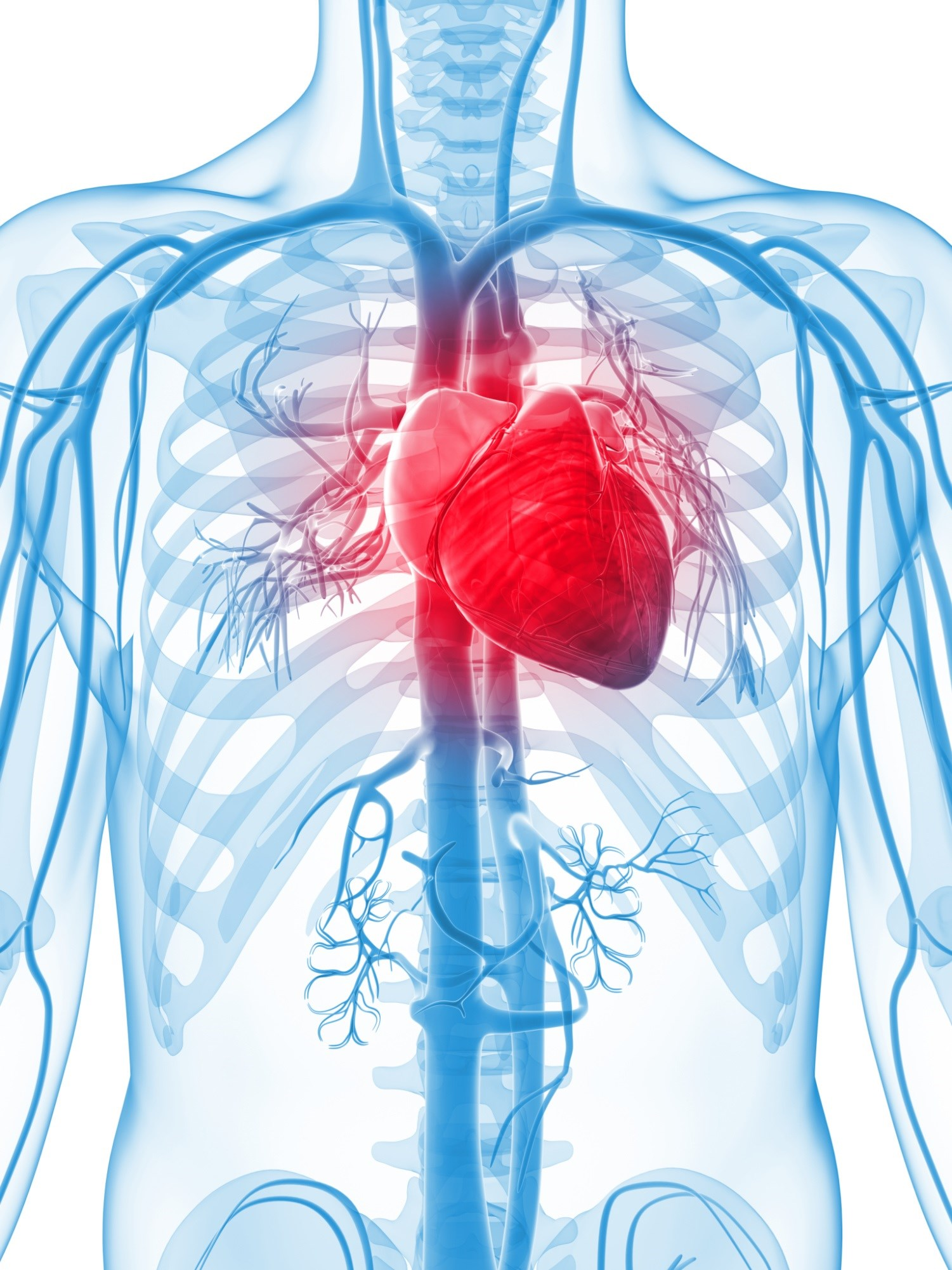 Increased Risk of Myocardial Infarction With Anti-TNF Biologics in RA