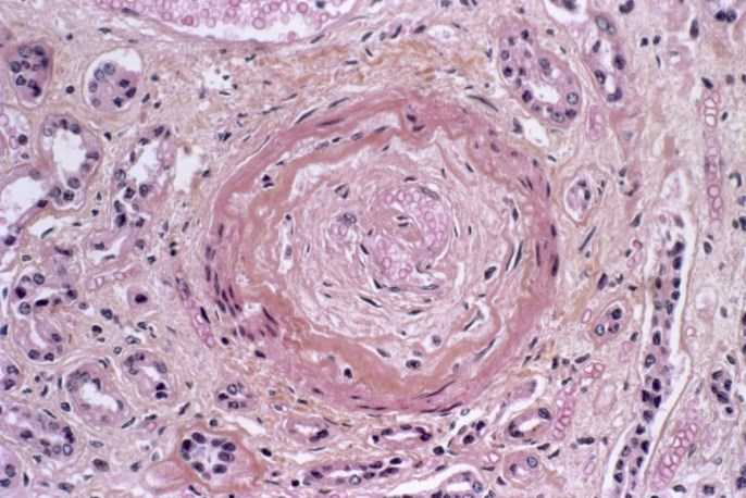 Case Study and Clinical Highlight: Diagnosis of Pulmonary Involvement in Systemic Sclerosis