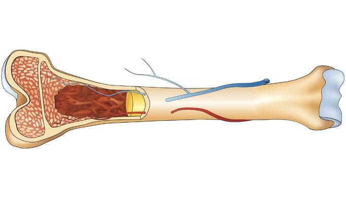 Updated Recommendations for Development of Peak Bone Mass