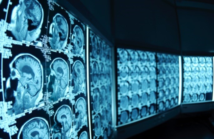 Physicians Ordering Imaging Studies Lack Knowledge of Radiation Risks