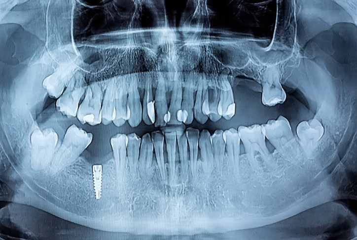 Role of Periodontitis in the Development of CCP-Positive JIA