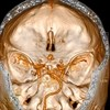 Rheumatoid Arthritis and Associated Neurologic Manifestations