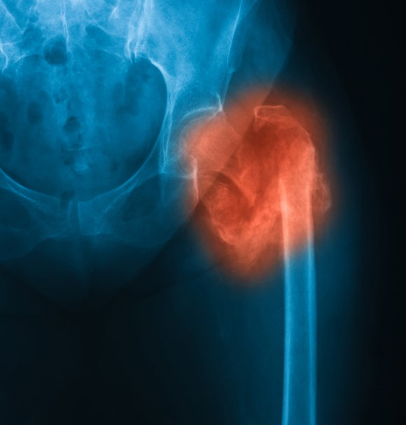 Teriparatide More Effective Than Risedronate in Osteoporotic Fractures