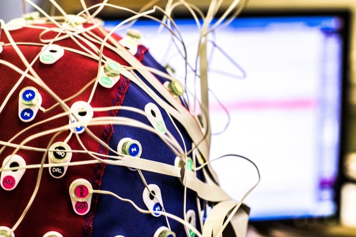 Opioid Dose Linked to Abnormal Nocturnal EEG in Chronic Pain