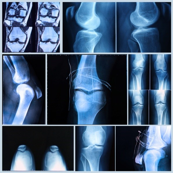 FRAX May Overestimate Fracture Risk in RA Patients