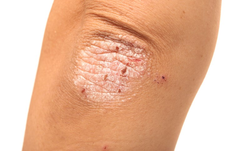 Tofacitinib Improves Patient-Reported Outcomes for Active Psoriatic Arthritis