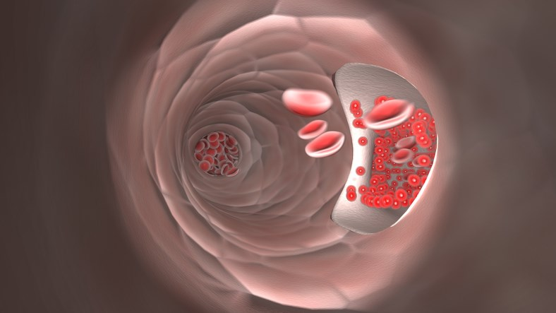 Ischemic Digital Ulcers Not Reduced by Endothelin-1 Blocker Macitentan in SSc