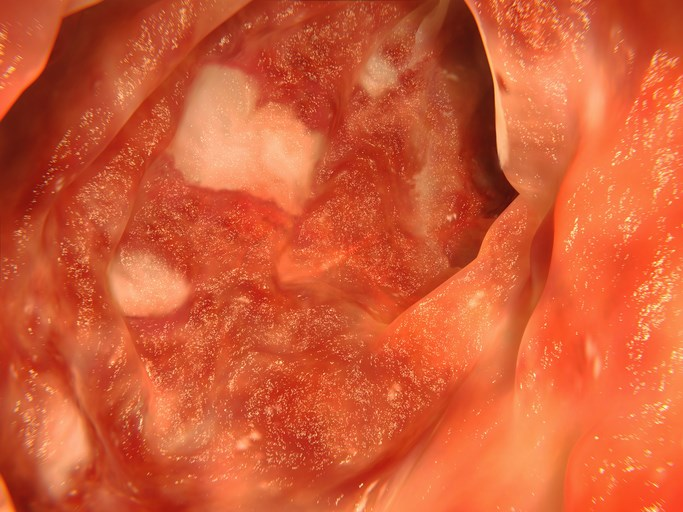Extended Disease Duration Increases Risk for IBD, Uveitis in Axial Spondyloarthritis