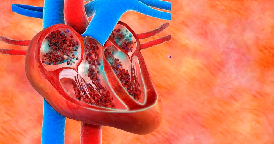 Outcomes With Rivaroxaban in Chronic Heart Failure With Underlying CAD