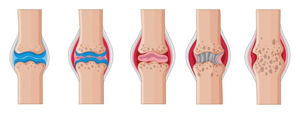 Good Long-Term Outcomes Seen With Early Rheumatoid Arthritis Treatment