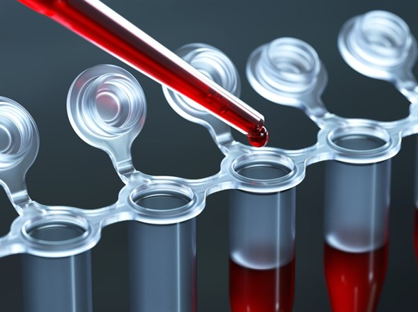 Researchers evaluated the potential of a diagnostic biomarker blood test for bipolar disorder.