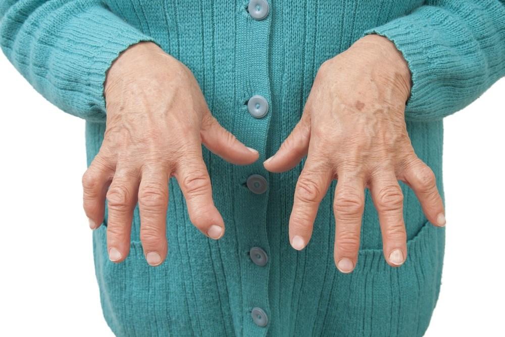 Response to Certolizumab Pegol at 12 Weeks Predicts Long-Term RA Outcomes