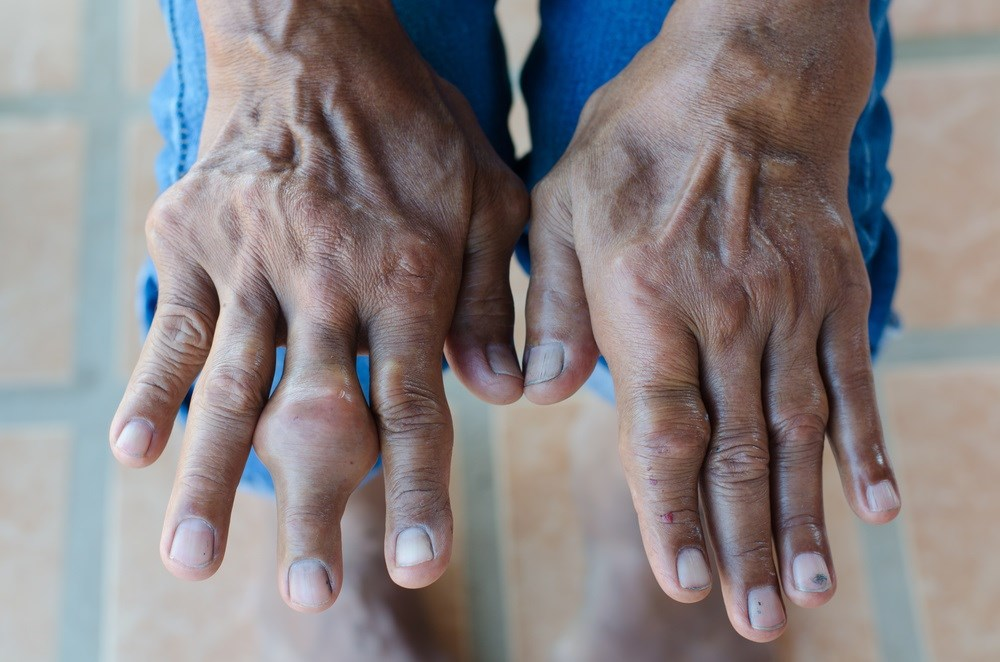 Patients with gout who did not reach a serum uric acid level below 6 mg/dL had a 2.4-fold increased risk for death. <i>Image Credit: Science Source</i>