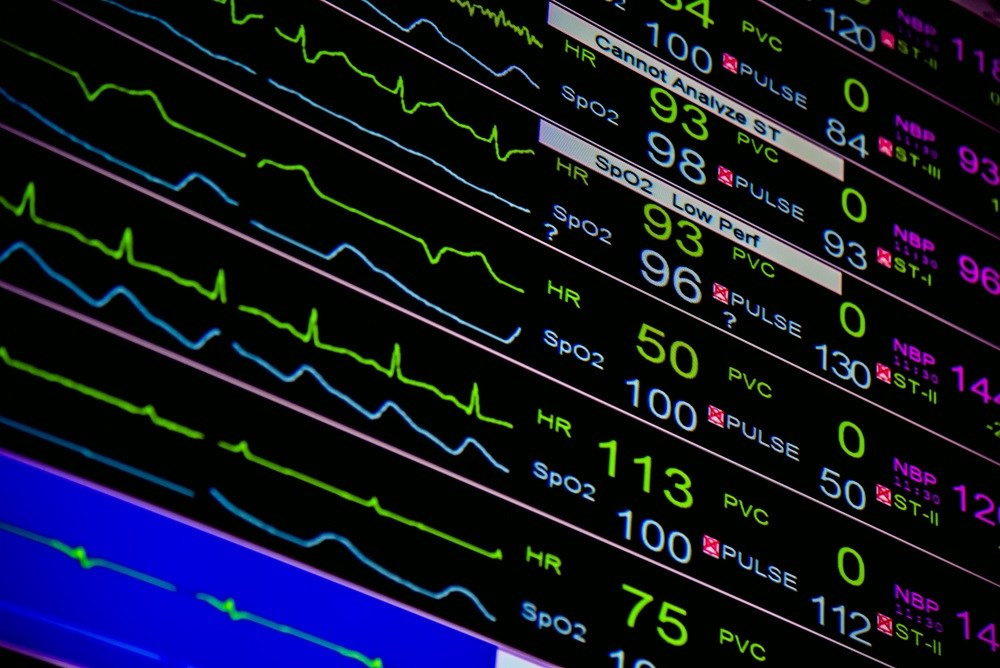 Oxygen Desaturation Index Predicts AFib Risk in Ischemic Stroke