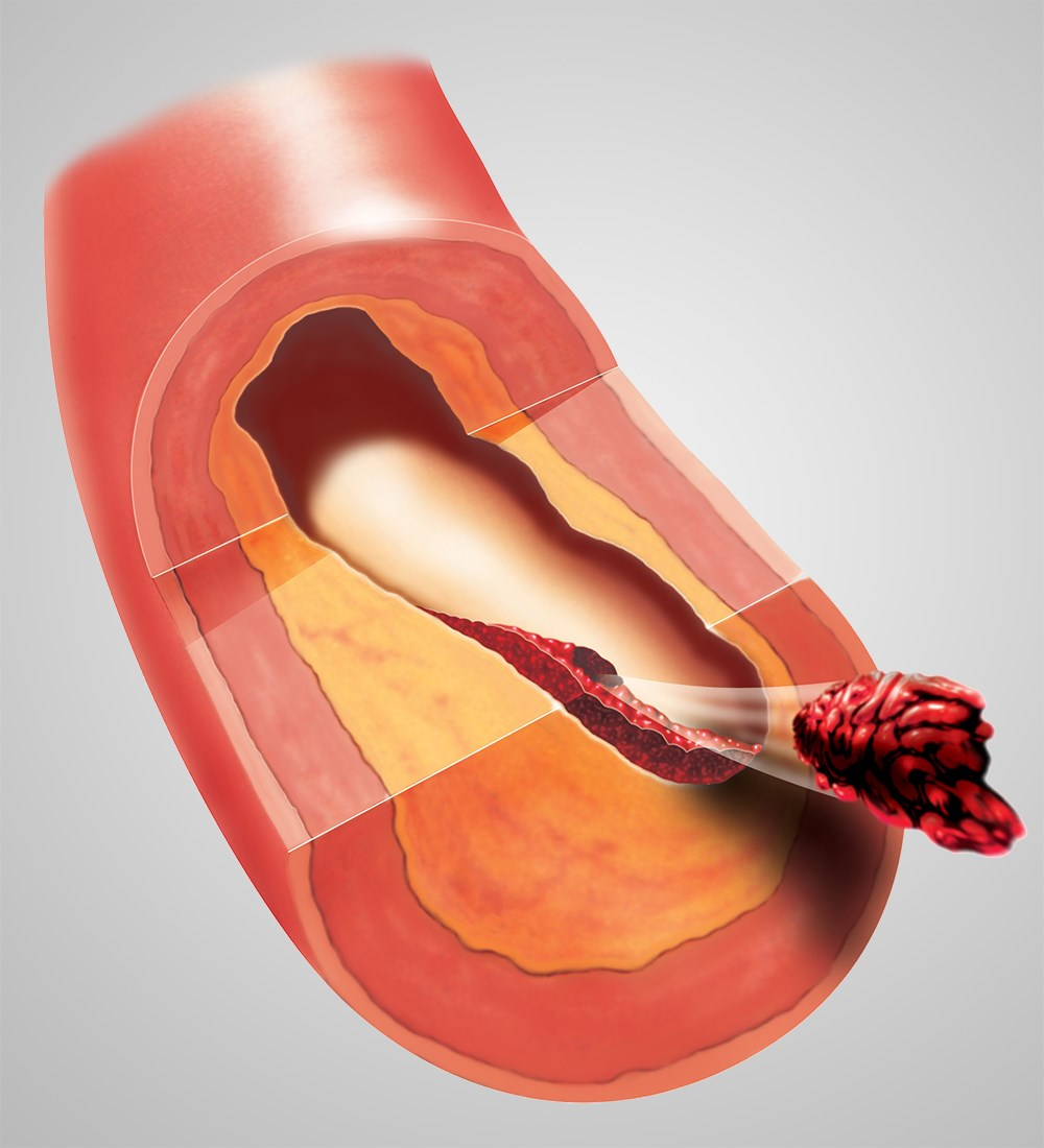 Pharmacologic prophylaxis should be considered unless an absolute contraindication exists.