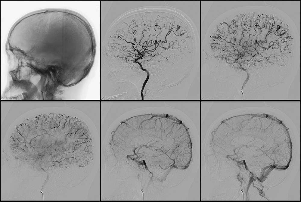 Effects of Cerebrovascular Morbidity on Quality of Life in SLE