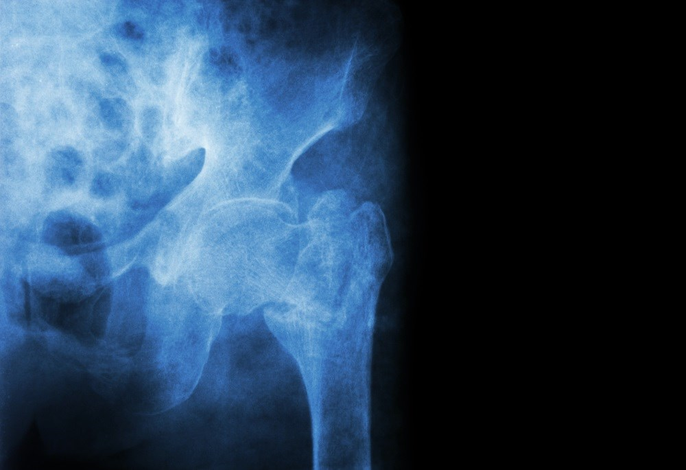 Meta-analysis Quantifies Fracture Risk Reduction With Calcium, Vit D