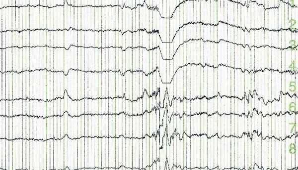 Sleep Disturbances Mediate Disease and Function in AS