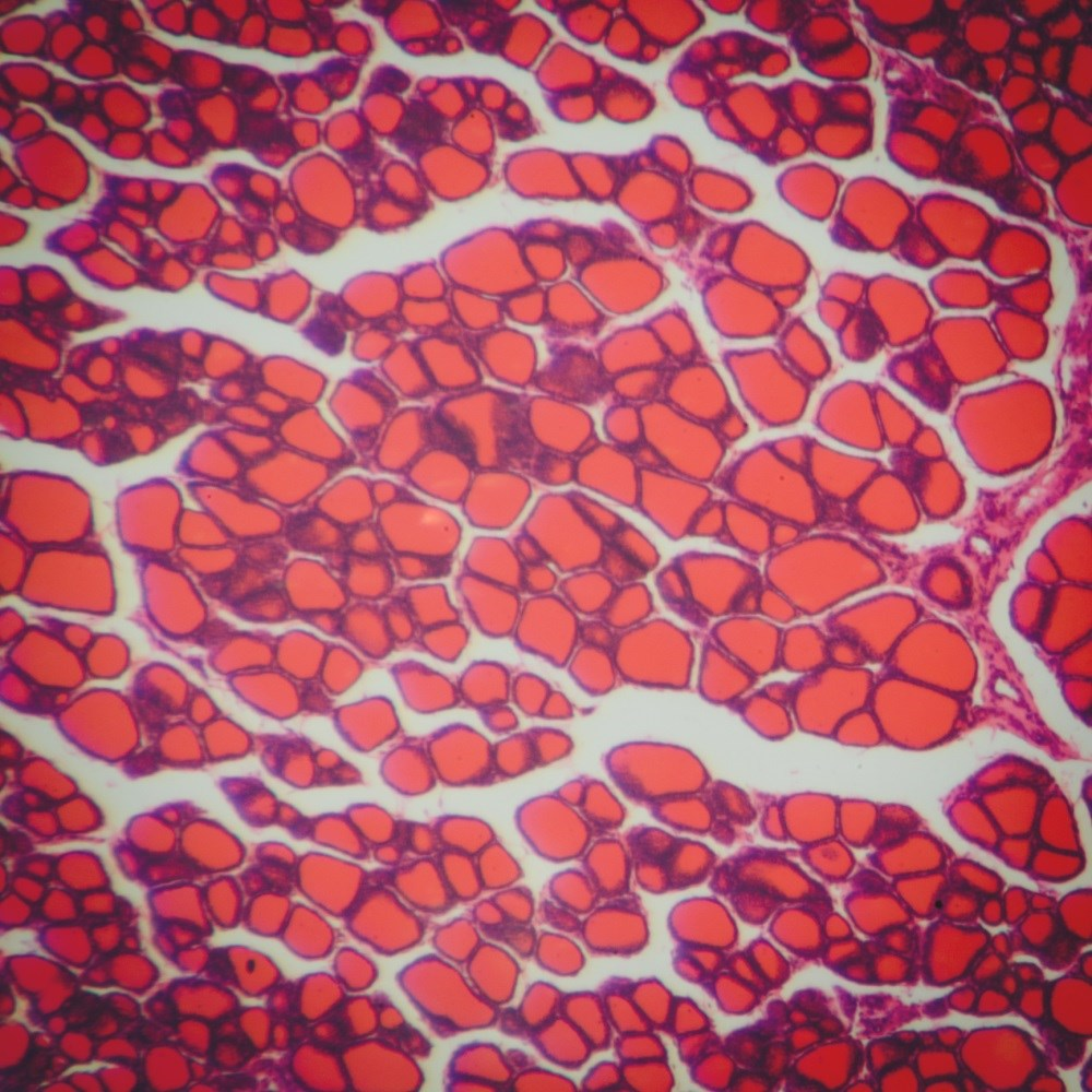 High Prevalence of Autoimmune Thyroid Disease in FM