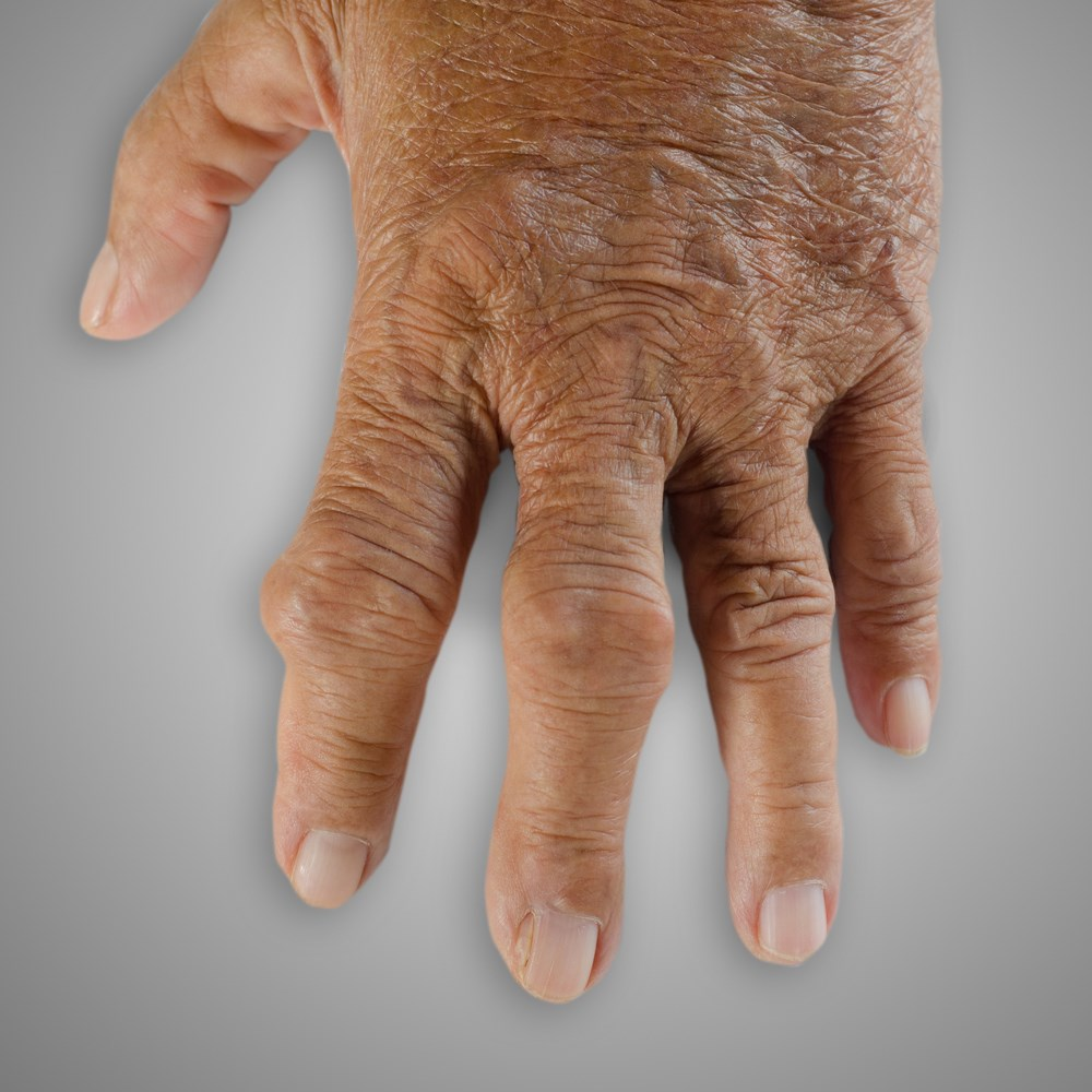 Patients with tophaceous gout undergoing combination therapy with lesinurad and febuxostat showed a greater degree of symptom resolution than with febuxostat monotherapy.