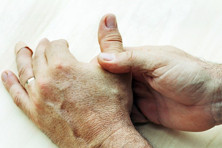 Increased body mass index may have a moderate effect on hand osteoarthritis.