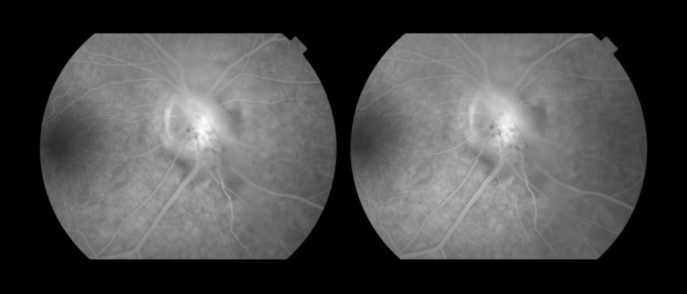 Risk Factors Associated With Increased Uveitis Incidence in AS