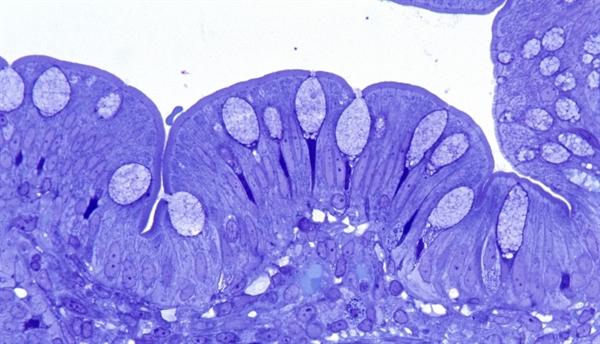 Targeting the Intestinal Microbiome With Antibiotics