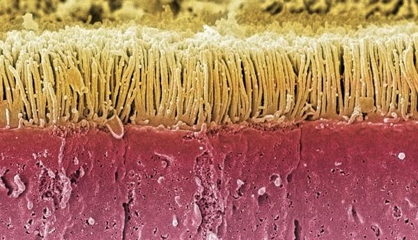 Altering Gut Flora with Probiotics